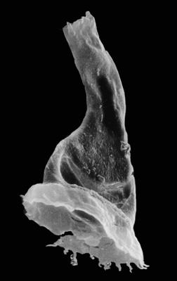<i><i>Anthochitina primula</i></i><br />Viki borehole, 140.10 m, Adavere Stage ( 272-31)