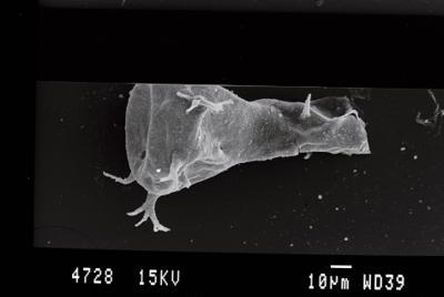 <i><i>Ancyrochitina ancyrea</i> | Ancyrochitina cf. ancyrea</i><br />Ohesaare borehole, 41.00 m, Kaugatuma Stage ( 754-79)