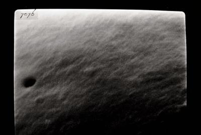 <i><i>Angochitina longicollis</i> | Angochitina aff. longicollis</i><br />Varbla 502 borehole, 135.10 m, Adavere Stage ( 754-107)