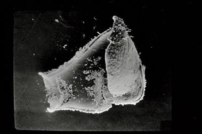 <i><i>Ancyrochitina ancyrea</i> | Ancyrochitina sp. ancyrea</i><br />Ohesaare borehole, 26.20 m, Kaugatuma Stage ( 754-728)