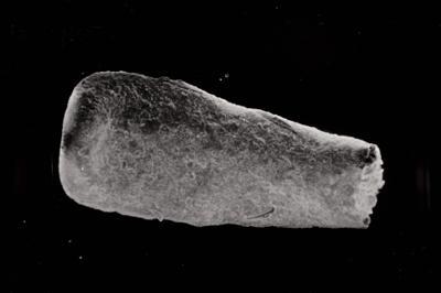<i><i>Conochitina cribrosa</i></i><br />Ohesaare borehole, 181.45 m, Jaagarahu Stage ( 754-783)