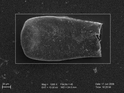 <i><i>Eisenackitina clunensis</i> | Eisenackitina aff. clunensis</i><br />Pavilosta 51 borehole, 783.00 m, Paadla Stage ( 754-250)