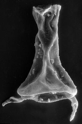 <i><i>Chitinozoa</i> | Plectochitina cf. spongiosa (Achab, 1977)</i><br />Viki borehole, 226.40 m, Juuru Stage ( 272-51)