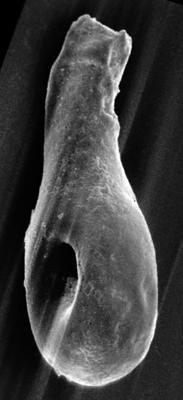 <i><i>Angochitina longicollis</i></i><br />Varbla 502 borehole, 135.10 m, Jaani Stage ( 272-54)