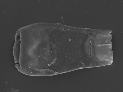 <i><i>Belonechitina meifodensis</i></i><br />Kolka 54 borehole, 588.90 m, Adavere Stage ( 754-425)