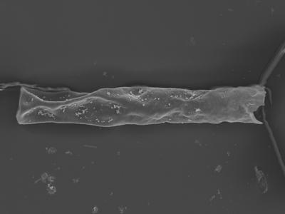 <i><i>Rhabdochitina</i> | Rhabdochitina sp.</i><br />Ohesaare borehole, 161.70 m, Jaagarahu Stage ( 754-331)