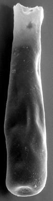 <i><i>Conochitina iklaensis</i></i><br />Ohesaare borehole, 411.00 m, Juuru Stage ( 272-95)
