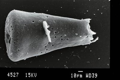 <i><i>Belonechitina latifrons</i> | Belonechitina aff. latifrons</i><br />Gussev 1 borehole, Kaliningrad oblast, 1453.60 m, Paadla Stage ( 754-27)