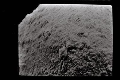 <i><i>Eisenackitina</i>   Eisenackitina sp. sp.</i><br />Kolka 54 borehole, 202.00 m, Kaugatuma Stage ( 754-592)