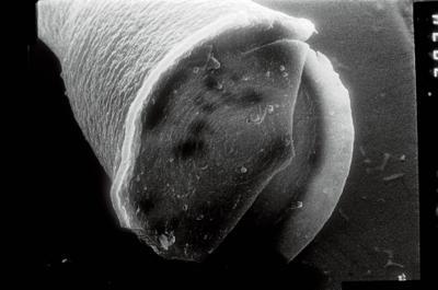 <i><i>Cyathochitina campanulaeformis</i></i><br />Laeva 18 borehole, 173.15 m, Juuru Stage ( 754-842)