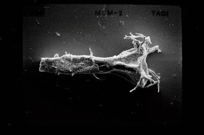 <i><i>Ancyrochitina gutnica</i> | Ancyrochitina gutnica</i><br />Ruhnu 500 borehole, 371.50 m, Jaagarahu Stage ( 754-546)