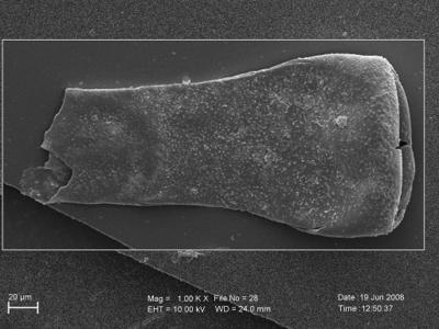 <i><i>Eisenackitina toddingensis</i>   Eisenackitina clunensis?</i><br />Pavilosta 51 borehole, 758.00 m, Paadla Stage ( 754-280)