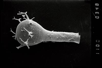 <i><i>Ancyrochitina</i> | Ancyrochitina aff. convexa</i><br />Staicele 4 borehole, 368.00 m, Raikküla Stage ( 754-1091)