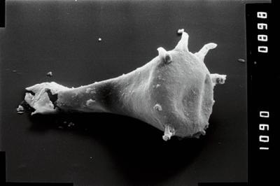 <i><i>Ancyrochitina</i> | Ancyrochitina aff. clathrospinosa</i><br />Vängla trench,  m, Adavere Stage ( 754-1951)