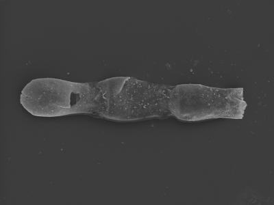 <i><i>Linochitina odiosa</i></i><br />Kolka 54 borehole, 482.60 m, Jaagarahu Stage ( 754-462)