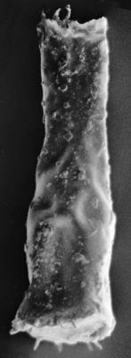 <i><i>Spinachitina</i> | Spinachitina cf. maennili (Nestor, 1980)</i><br />Ruhnu 500 borehole, 489.45 m, Adavere Stage ( 223-2)
