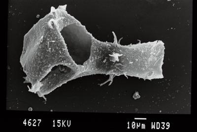 <i><i>Ancyrochitina gogginensis</i></i><br />Gussev 1 borehole, Kaliningrad oblast, 1425.30 m, Paadla Stage ( 754-51)