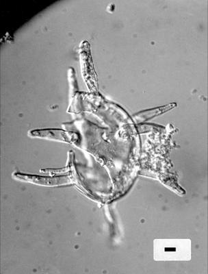 Baltisphaeridium digitiforme Gorka, 1969, GIT 344-34