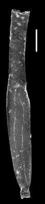 <i><i>Eremochitina</i> | Eremochitina sp. A, aff. baculata Taugourdeau et de Jekhowsky 1960</i><br />Museum of Art excavation section, Kadriorg, 0.30 m, Hunneberg Stage ( 424-76)