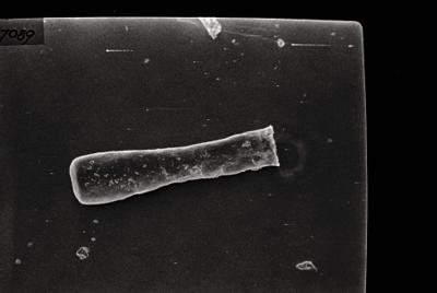 <i><i>Conochitina claviformis</i></i><br />Ohesaare borehole, 303.30 m, Jaani Stage ( 754-121)