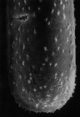 <i><i>Conochitina tuberculata</i></i><br />Rapla borehole, 170.00 m, Uhaku Stage ( 359-12)