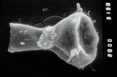 <i><i>Ancyrochitina</i> | Ancyrochitina  cf. sp. b</i><br />Ruhnu 500 borehole, 329.30 m, Jaagarahu Stage ( 754-924)