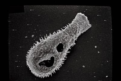 <i><i>Ancyrochitina</i> | Ancyrochitina cf. </i><br />Varbla 502 borehole, 145.20 m, Adavere Stage ( 754-141)