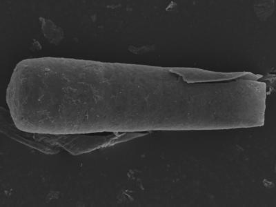 <i><i>Conochitina pachycephala</i></i><br />Kolka 54 borehole, 462.20 m, Jaagarahu Stage ( 754-1243)