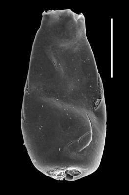 <i><i>Chitinozoa</i> | Conochitina malleus (nomen nudum) Van Grootel, 1990</i><br />Paatsalu 527 borehole, 95.76 m, Llandovery ( 493-11)