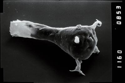 <i><i>Ancyrochitina</i></i><br />Ohesaare borehole, 440.15 m, Juuru Stage ( 754-1916)