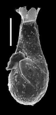<i><i>Angochitina</i> | Angochitina sp. 1</i><br />Dubovskoye borehole, 1220.00 m, Ludlow ( 607-11)