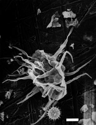 Baltisphaeridium pauciverrucosum Kjellström, 1971, GIT 344-62