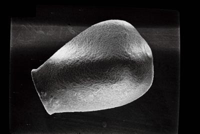 <i><i>Conochitina lagena</i></i><br />Ruhnu 500 borehole, 361.90 m, Jaagarahu Stage ( 754-685)