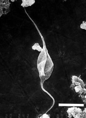 Leiofusa granulacutis Loeblich, 1970, GIT 344-128