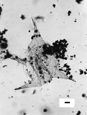 Veryhachium oligospinoides Uutela et Tynni, 1991, GIT 344-304