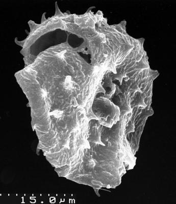 Buedingiisphaeridium tremadocum Rasul, 1979, TUG 1536-2