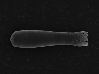 <i><i>Conochitina</i> | Conochitina aff. praeproboscifera</i><br />Kolka 54 borehole, 476.00 m, Jaagarahu Stage ( 754-1292)