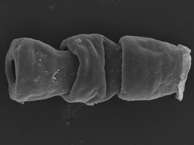 <i><i>Cingulochitina crassa</i></i><br />Kolka 54 borehole, 462.20 m, Jaagarahu Stage ( 754-1235)
