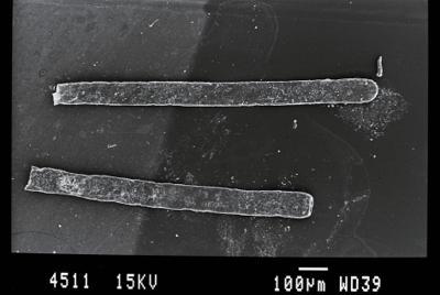 <i><i>Rhabdochitina</i> | Rhabdochitina sp.</i><br />Gussev 1 borehole, Kaliningrad oblast, 1467.80 m, Rootsiküla Stage ( 754-10)