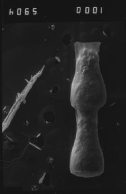 <i><i>Cingulochitina</i> | Cingulochitina cf. gorstyensis</i><br />Dubovskoye borehole, 1296.00 m, Paadla Stage ( 754-1128)