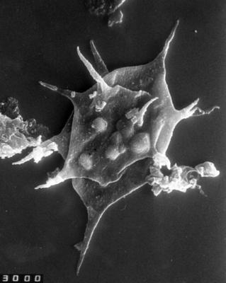 Goniosphaeridium sp., TUG 1528-36