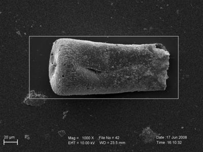 <i><i>Eisenackitina intermedia</i></i><br />Pavilosta 51 borehole, 804.30 m, Paadla Stage ( 754-248)