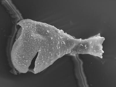 <i><i>Sphaerochitina lycoperdoides</i></i><br />Ohesaare borehole, 146.95 m, Rootsiküla Stage ( 754-364)