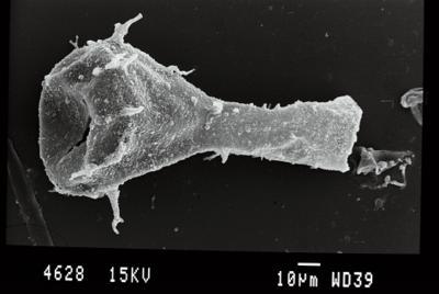 <i><i>Ancyrochitina gogginensis</i></i><br />Gussev 1 borehole, Kaliningrad oblast, 1425.30 m, Paadla Stage ( 754-52)