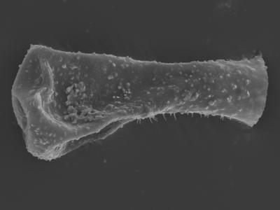 <i><i>Sphaerochitina concava</i></i><br />Ohesaare borehole, 147.60 m, Rootsiküla Stage ( 754-355)
