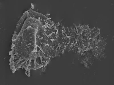 <i><i>Ramochitina</i> | Ramochitina sp.</i><br />Kolka 54 borehole, 517.00 m, Jaagarahu Stage ( 754-438)