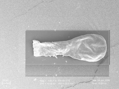 <i><i>Angochitina elongata</i> | Angochitina aff. elongata</i><br />Ohesaare borehole, 117.50 m, Paadla Stage ( 754-259)