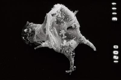 <i><i>Ancyrochitina clathrospinosa</i></i><br />Pulli 2 borehole, 14.20 m, Jaani Stage ( 754-917)