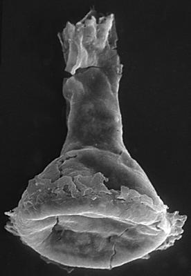<i><i>Chitinozoa</i> | Clathrochitina aff. clathrata Eisenack, 1959</i><br />Kirikuküla borehole, 11.50 m, Adavere Stage ( 272-57)