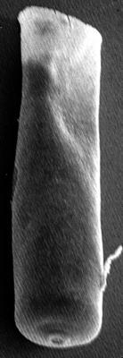 <i><i>Chitinozoa</i> | Conochitina aff. tuba Eisenack, 1932</i><br />Ikla borehole, 370.80 m, Raikküla Stage ( 272-131)